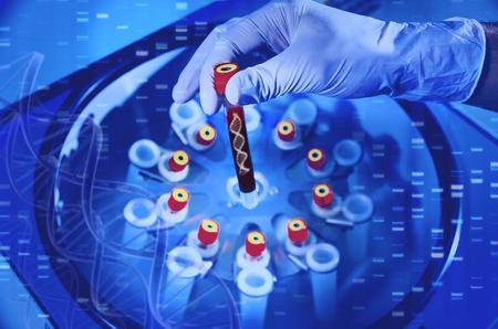 Análisis de dnk. Una mano en un guante médico sostiene un tubo de ensayo con ADN. Estudios bacteriológicos en el laboratorio. Espirales y moléculas de sangre de ADN. Exámenes médicos para virus, hongos y enfermedades. Investigaciones microbiológicas de enfermedades virales Foto de archivo