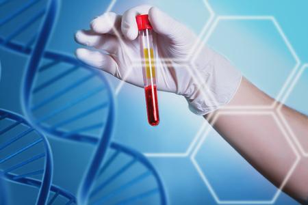 Analyse von dnk. Eine Hand in einem medizinischen Handschuh hält ein Reagenzglas mit DNA. Bakteriologische Studien im Labor. Spiralen und Blutmoleküle der DNA. Medizinische Tests für Viren, Pilze und Krankheiten. Mikrobiologische Untersuchungen von Viruserkrankungen