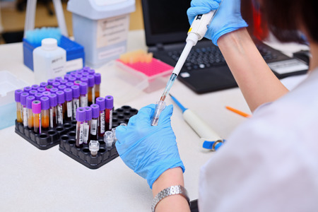 Análisis de sangre en el laboratorio. Ayudante de laboratorio trabajando con el dosificador. Tubos de vacío con sangre.