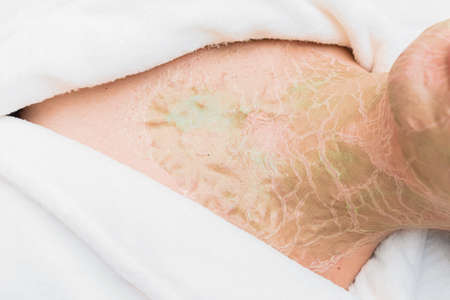 Close-up of dried cracked enzyme mask on a woman's neck. Rejuvenation and facelift in a cosmetology clinic.