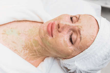 Dried enzyme mask on the face and neck of a woman. Rejuvenation and facelift in a cosmetology clinic.