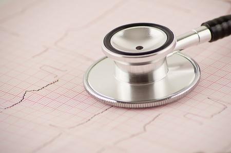 medical stethoscope on electrocardiogram  photo