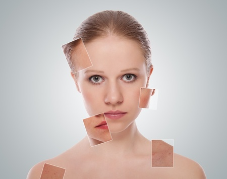 treatment, skin care.  face  before, after  procedure Stock Photo - 13043067