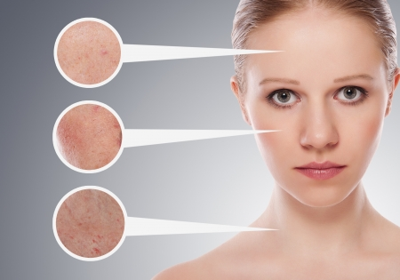 concept skincare. Skin of beauty young woman Stock Photo - 13877033