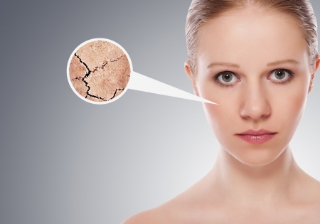 dehydrated: concept of cosmetic effects, treatment and skin care.