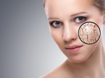 piel: concepto de la cara de una mujer joven con la piel seca Foto de archivo