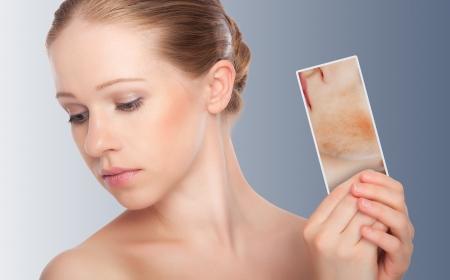 arrugas: concepto de cuidado de la piel. Piel de la mujer joven de la belleza con enrojecimiento, problemas de la piel, acné, erupciones, quemaduras en un fondo gris