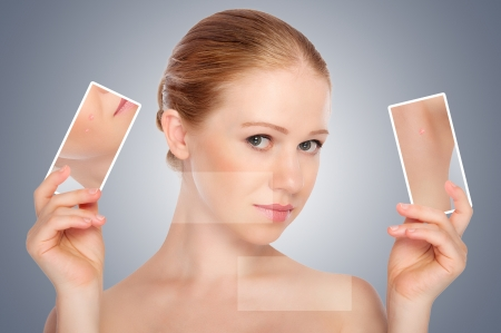 concept skincare . Skin of beauty young woman with acne  on a gray background photo
