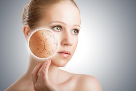 rides: concept d'effets cosm�tiques, les traitements et les soins de la peau. visage de jeune femme � la peau s�che Banque d'images