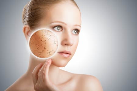 dehydrated: concept of cosmetic effects, treatment and skin care.  face of young woman with dry skin