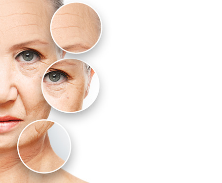 aged: concetto di bellezza invecchiamento della pelle. procedure anti-invecchiamento, ringiovanimento, di sollevamento, di serraggio della pelle del viso, restauro di pelle giovane anti-rughe