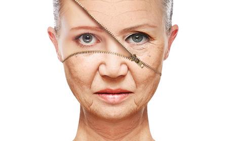 Beauty-Konzept Hautalterung. Anti-Aging-Verfahren, Verjüngung, Heben, Straffung der Gesichtshaut, die Wiederherstellung der jugendlichen Haut Anti-Falten-