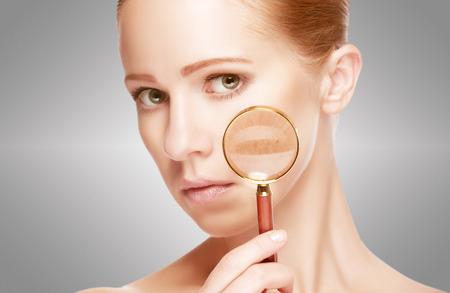 desnudo de mujer: concepto de cuidado de la piel. Piel de la joven belleza con lupa antes y despu�s del procedimiento sobre un fondo blanco