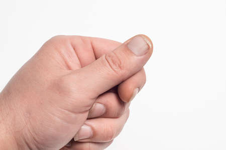 Close-up of brittle nails. A broken nail on your finger. Concept of nail care and health.