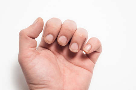 Close- up of long nails. Brittle nails on your finger . Concept of nail care and health.