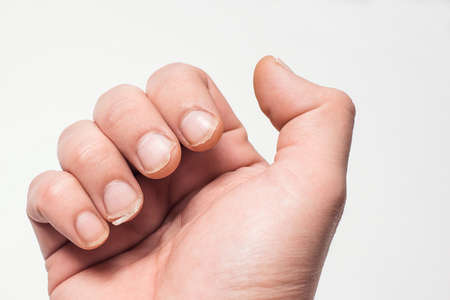 Close- up of bitten and brittle nails. A broken nail on your finger . Concept of nail care and health.