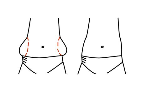 Fatly sides of the body. Vector illustration