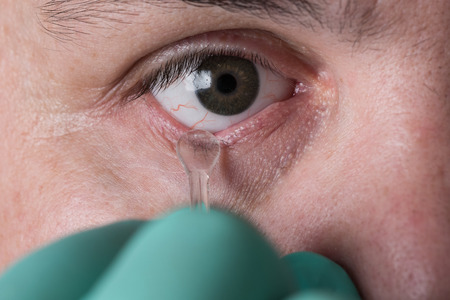 ocular prosthesis in men after the injury and loss of the eye Stock Photo