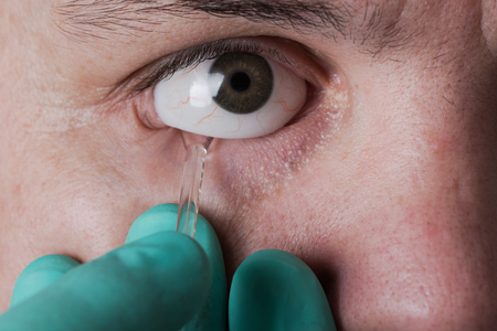ocular: ocular prosthesis in men after the injury and loss of the eye Stock Photo