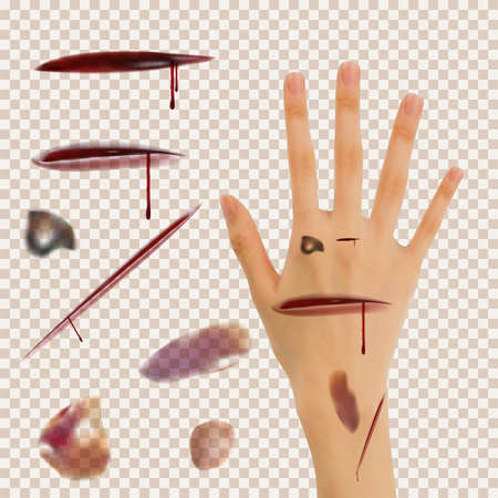 Set of cuts, bruises. Using the transparency effect to any background color, image jpg, jpeg, png, photo of the skin. A realistic wrist as an example. Vector eps10.