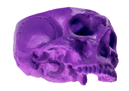 Purple chopped skull at an unusual angle missing cranium