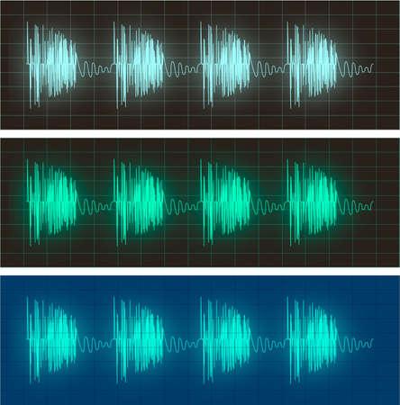 電気信号の波形表示