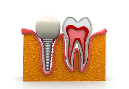 Dental implement. 3d render