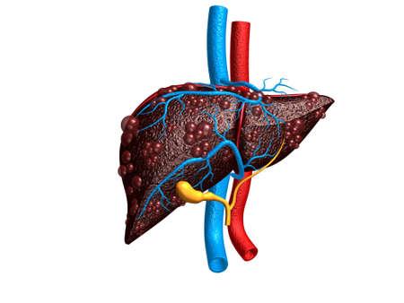 Diseased liver. 3d render