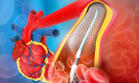 Human heart angioplasty. 3d illustration Foto de archivo - 131459242