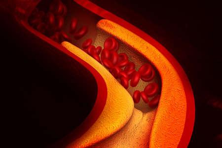 Cholesterol blocking artery. 3d illustration