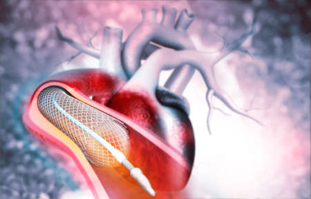 Human heart angioplasty. 3d illustration Foto de archivo - 131463668