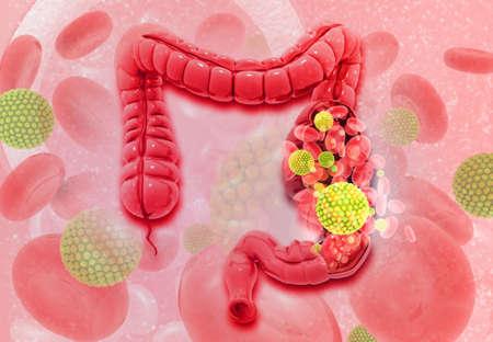 Colon cancer. Virus cells on colon. 3d illustration