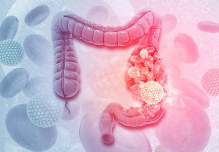 Colon cancer. Virus cells on colon. 3d illustration  Stok Fotoğraf
