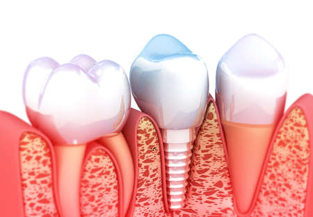 Tooth implant. 3d illustration  写真素材