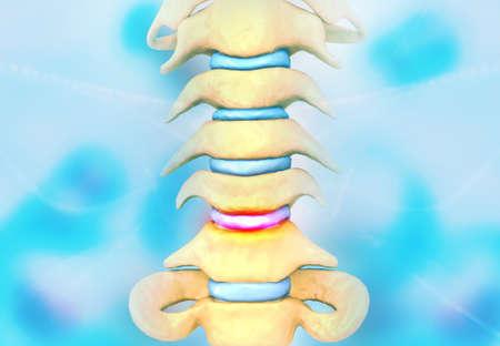 Disc problem of human spine. 3d illustration Reklamní fotografie