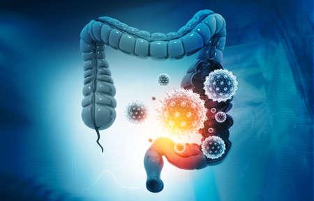 Colon cancer, bacterias, viruses in sick unhealthy intestine. 3d illustration