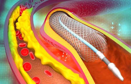Coronary artery stent. Clogged arteries. 3d illustration Standard-Bild