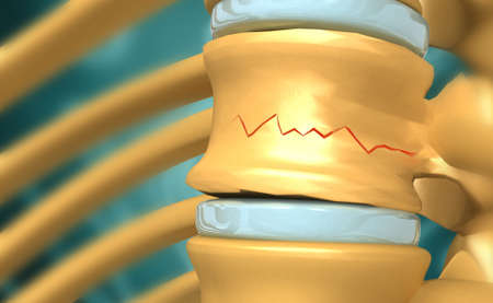 Spinal cord injury. 3d illustration