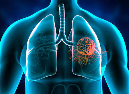 Lungs cancer, tumor in lungs. 3d illustration