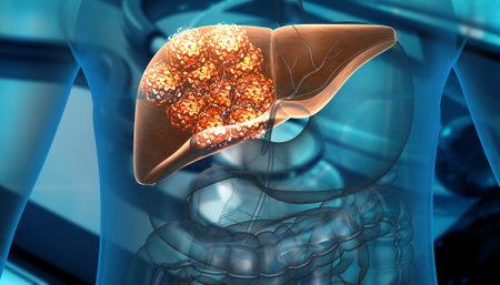 Human liver cancer cell growth. 3d illustration Standard-Bild