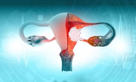 Female uterus cancer. 3d illustration Standard-Bild