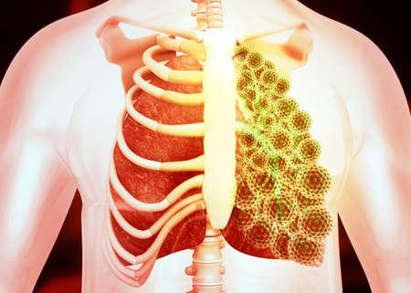 Human lungs cancer concept. 3d illustration Standard-Bild