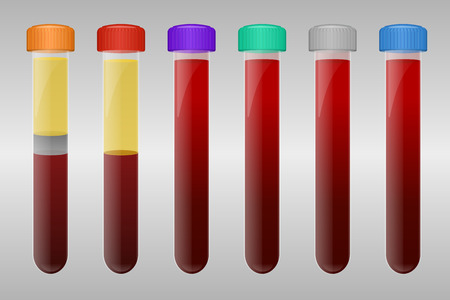 precipitate: Blood sample tubes for different types of blood tests