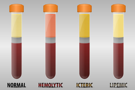 specimen: Common types of blood serum sample errors