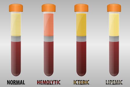 Les types communs d'erreurs d'échantillon de sérum sanguin
