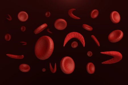Sickle and normal red blood cells