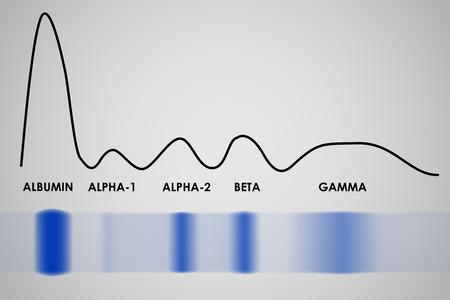 혈청 단백질 겔 전기 영동 실험 결과 전형적인 일러스트