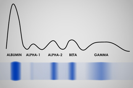 Typical result of blood serum protein gel electrophoresis test