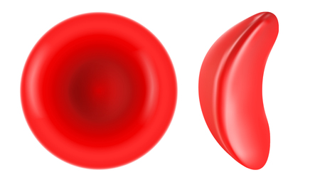 Sickle cell and normal red blood cell illustration
