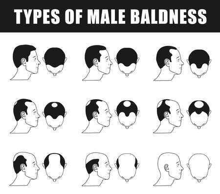 bald spot: male baldness icons Illustration